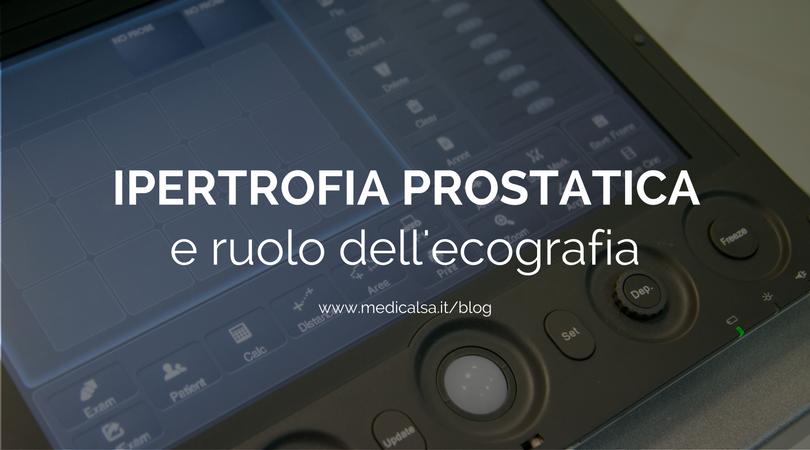 ecografia prostata trans rettale in 3d 2017